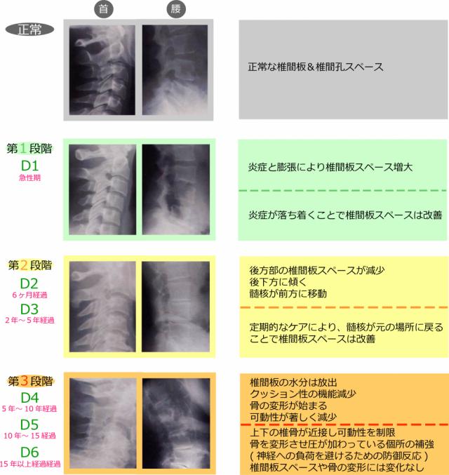 椎間板の段階と改善 画像