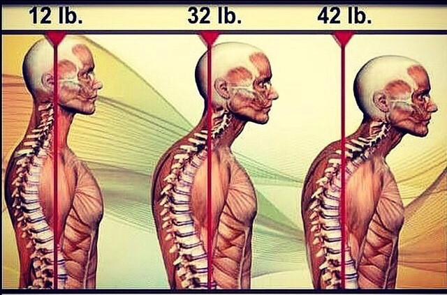頭部の重さによる背骨の影響イラスト