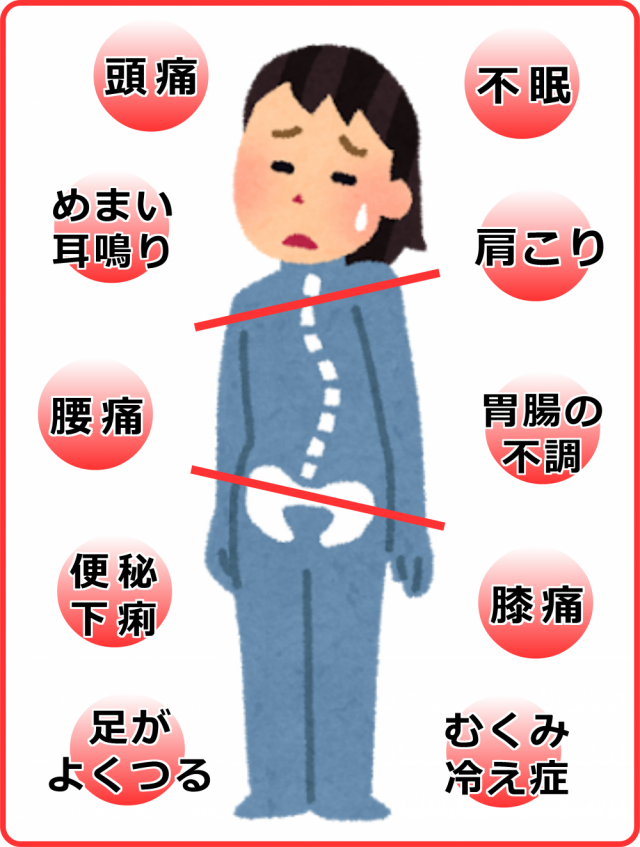 歪みと症状画像。千葉県柏市で整体院をお探しなら宮田カイロプラクティック!
